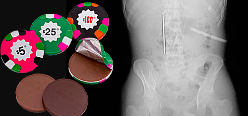 Which would you swallow: chocolate poker chips or five-inch saw blade?